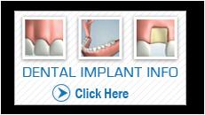 implant_vid