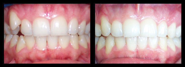 Los angeles cosmetic dentistry