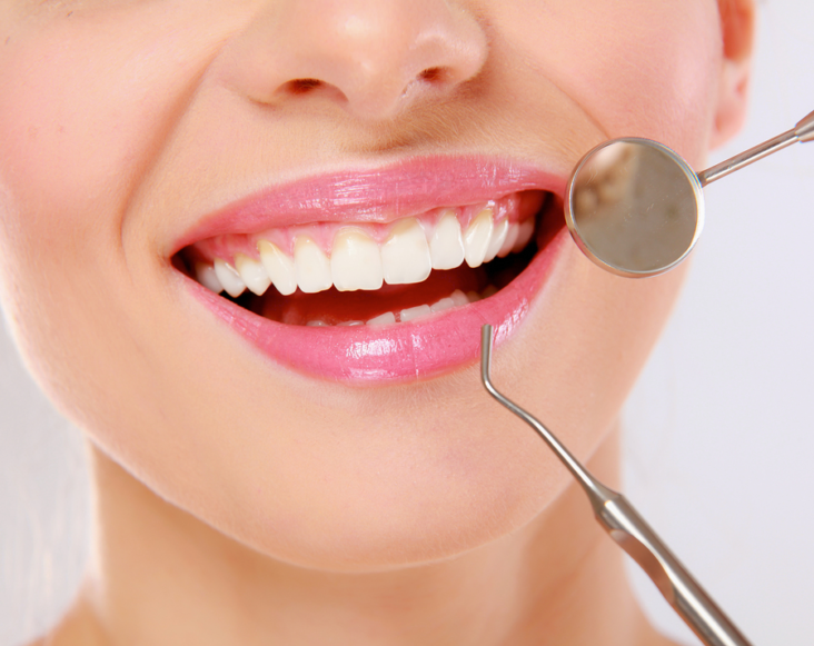 What is Fluoride Treatment and How Can it Help Your Teeth?
