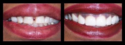 Los angeles dental clinic