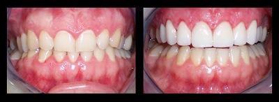 Los angeles dental sealants