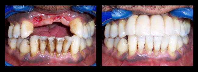 Composite fillings los angeles