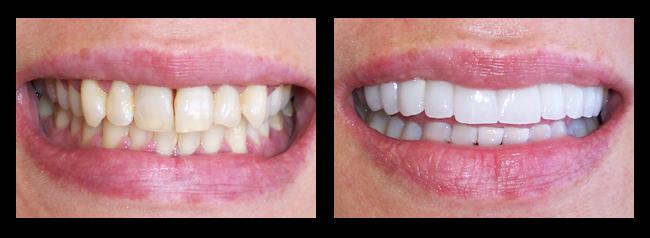 Los angeles cosmetic dentistry