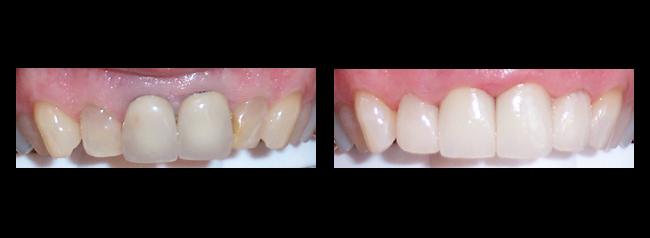 Dental Bonding los angeles