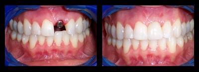 Los angeles sedation dentistry