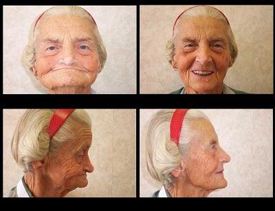 Los angeles sedation dentist