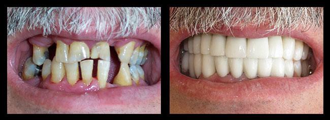 Dental sealants los angeles