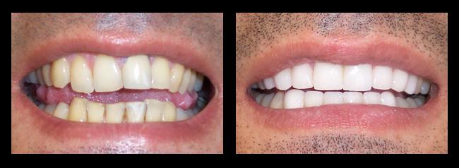 Teeth whitening los angeles