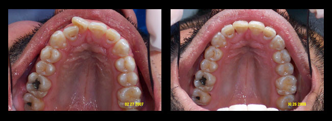 Los angeles ca dentist