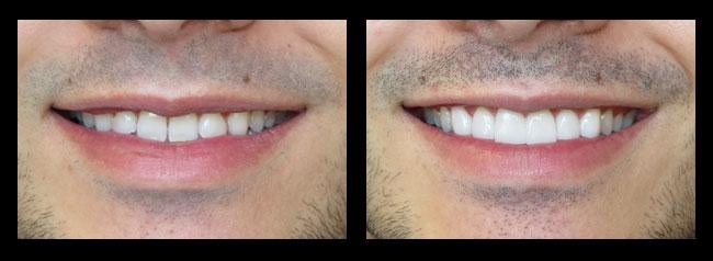 Specialty dentures los angeles