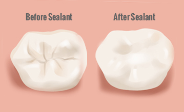 An Overview Of Dental Sealants dentist in Los Angeles Dr. Shervin Louie