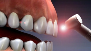 Dental Lasers How They Help Maintaining Oral Hygiene dentist los angeles dr. sharvin louie