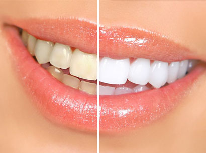How Cosmetic Dentistry Improves Your Smile dentist in Los Angeles Dr. Shervin Louie