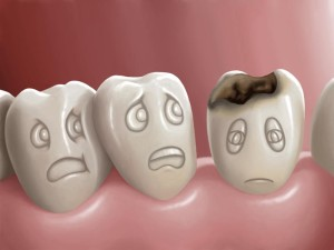 Preventing Tooth Decay The Best Methods Available dentist in los angeles dr. shervin louie