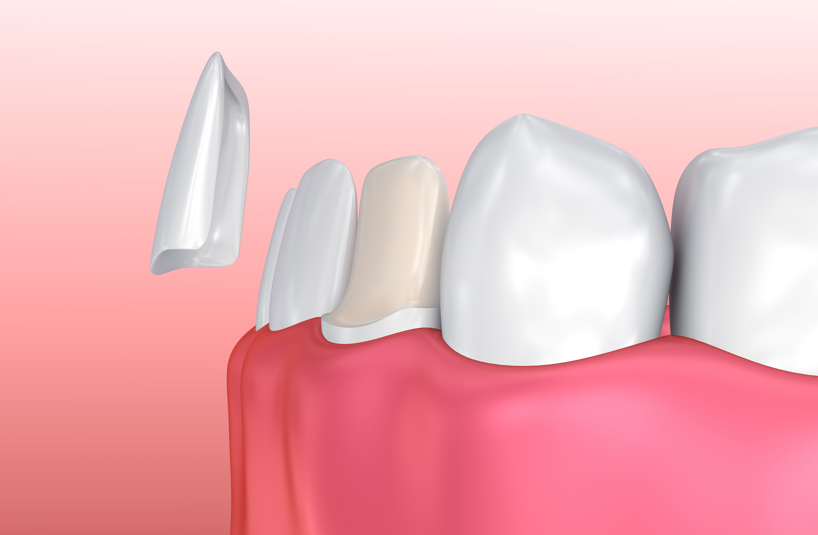 Los Angeles Dental Sealants