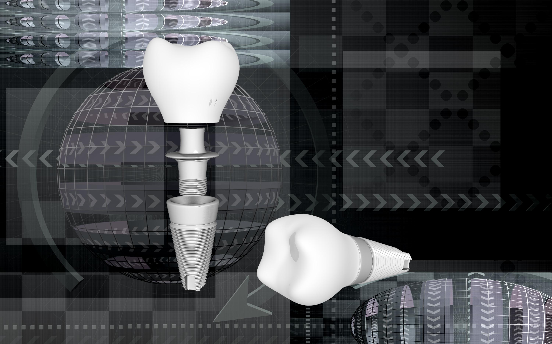 Dental Implant CG Rendering