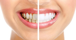 dr shervin louie dentist los angeles 7 best tips to get better smile