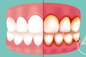 gingivitis dentist los angeles treatment symptoms