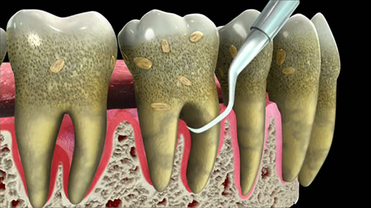 root planing & scaling dentist in los angeles dr. shervin louie