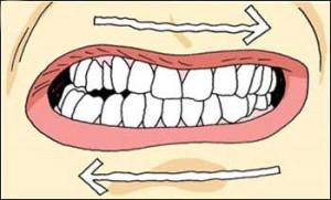 teeth grinding bruxism dr. shervin louie dentist in Los Angeles
